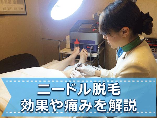 【体験談】ニードル脱毛(永久脱毛)の効果や痛みについて