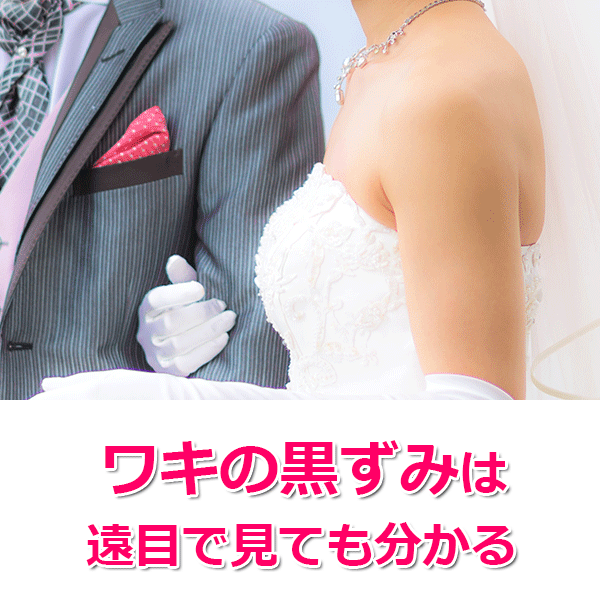 結婚式の脇の処理、ブライダル脱毛でキレイな花嫁に!