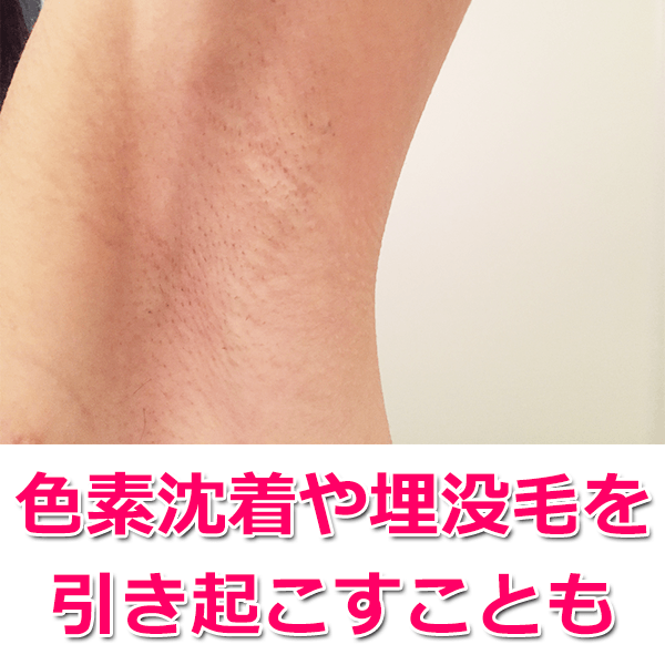 肌トラブルを引き起こしやすい