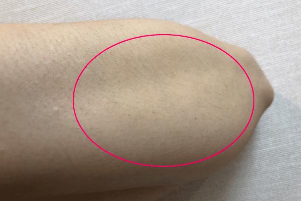 女性の濃い腕毛でもチクチクしない処理方法4選。剃る以外の方法とは?